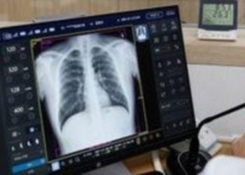 Οι Συνέπειες Της Covid 19 Στους Πνεύμονες Και Σε Άλλα Όργανα Του Σώματος Που Οδηγούν Στον Θάνατο